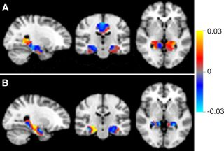 Mild Cognitive Decline Brain Scans