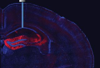 Image shows a magnified part of a mouse's brain where an optic fiber is inserted to switch neurons on and off.