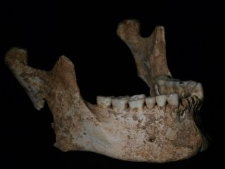 The lower jaw of an adult male found in Tomb I. This jaw may belong to Philip II, father of Alexander the Great.