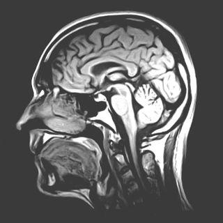 MRI of a human brain, sagittal slice.