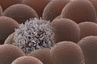 An illustration of a cancerous cell among healthy cells.