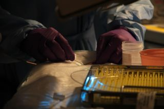 A doctor holds a laser, shining a blue light, during a medical procedure.