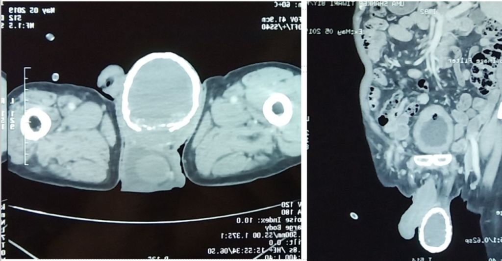 A CT scan showed that the man had calcification in his right scrotum.