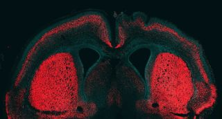 mouse brain with neurons in red