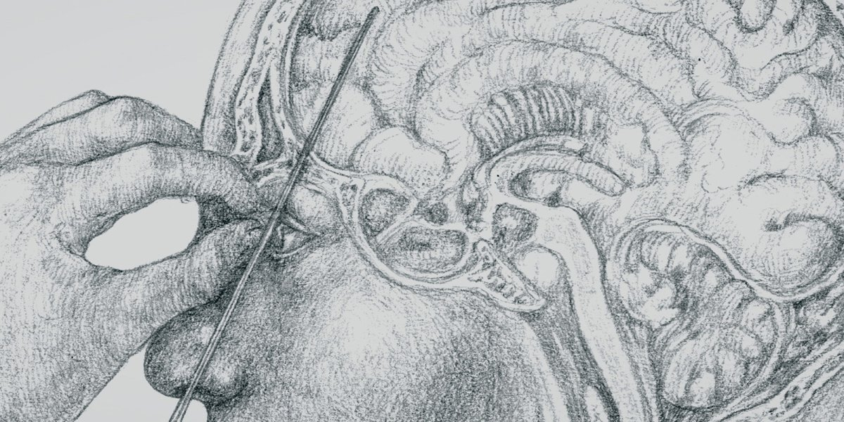 """An example of a lobotomy featured in the episode """"Echoes"""" on Lore on Amazon."""