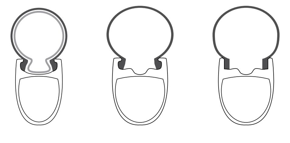 Evolução do aro sem gancho