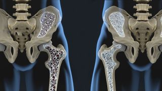 Osteoporotic bone compared to healthy bone