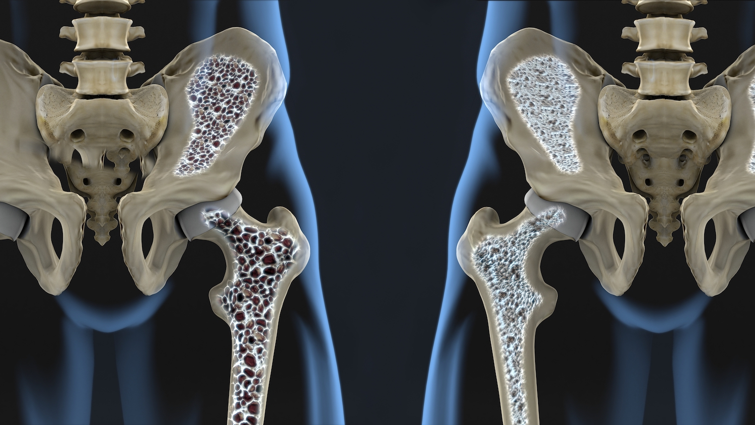 Diet and lifestyle advice for osteoporosis