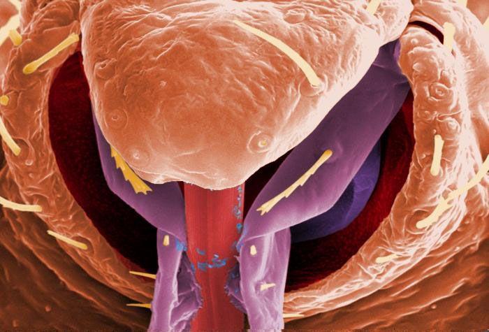 Up Close Personal A Bedbug Album Live Science