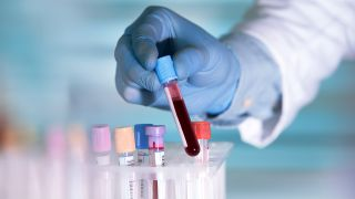 Blood samples in different vials