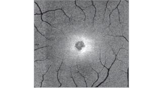 retina, solar retinopathy