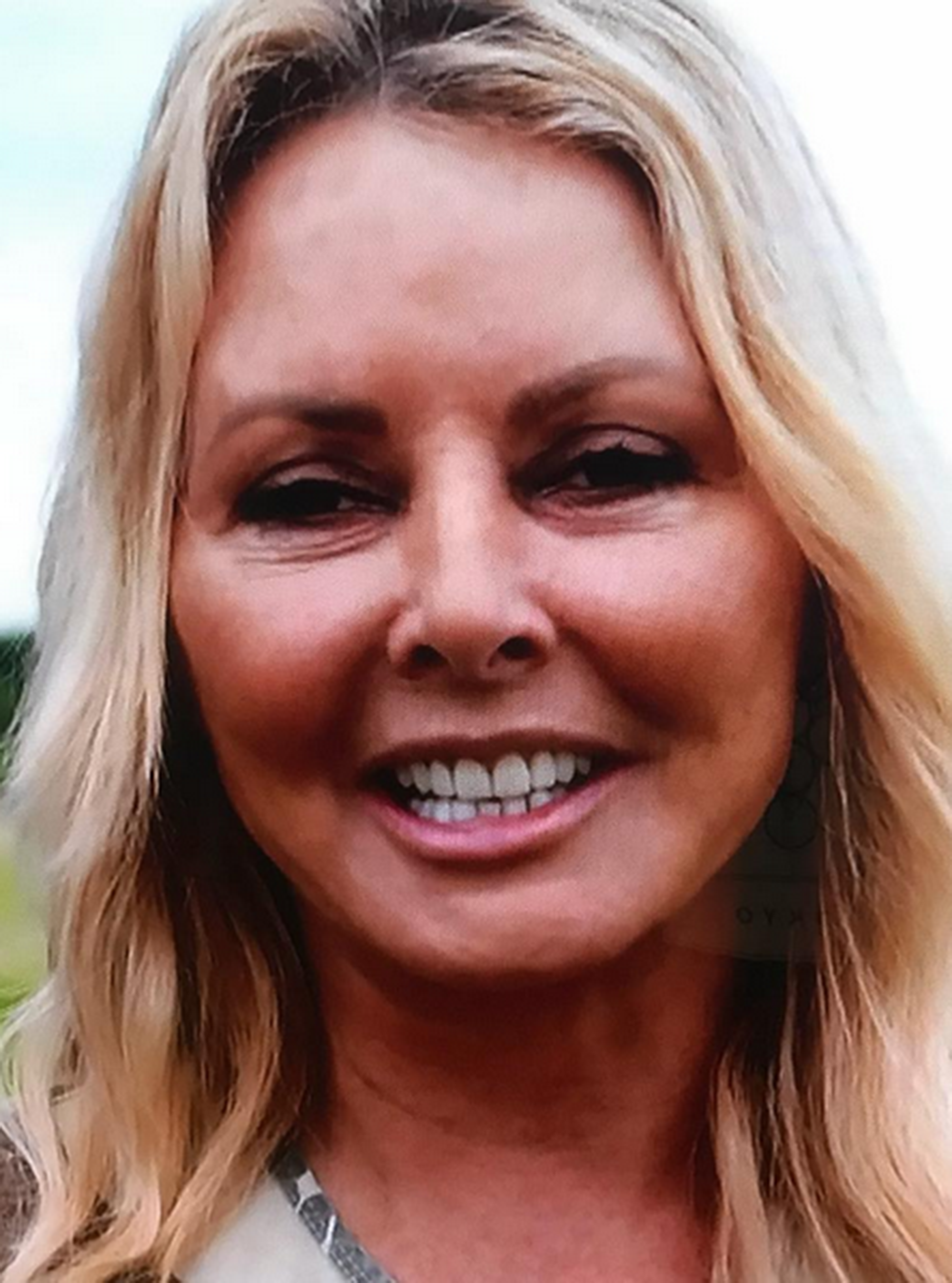 No Sleep, Heartbroken': Carol Vorderman Explains The Reason For Her Puffy' Face