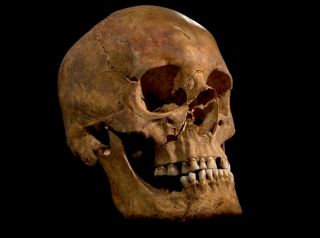 skull of what may be King Richard III