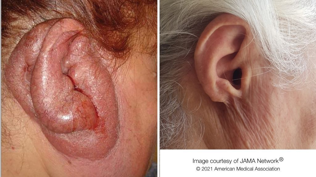 Woman's foul-smelling 'turkey ear' caused by decades-long infection