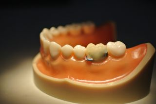 A smart tooth with wires attached to it sits within an artificial human jaw.