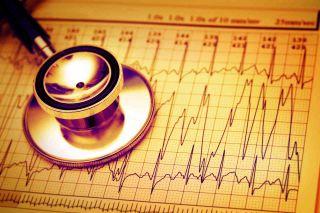 Stethoscope lying on ECG graph