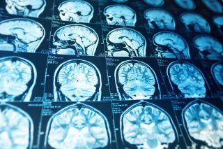 A brain MRI.