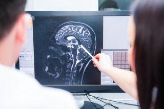 brain, mri, brain scan