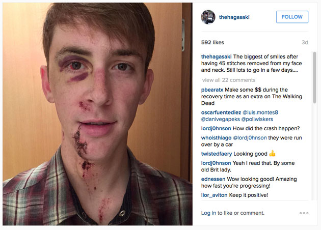 Thumbnail: Chad Haga posted a photograph of himself on Instagram showing his facial injuries.