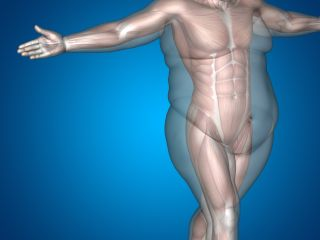 Obesity Causes Complications Treatments Live Science