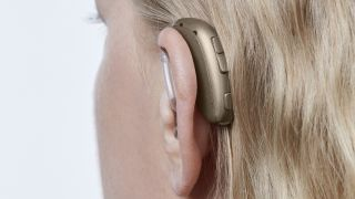 Oticon Xceed SP Hearing Aid: Price, spec, design, features, user reviews