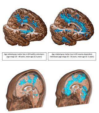 Brain loss caused by cocaine addiction.