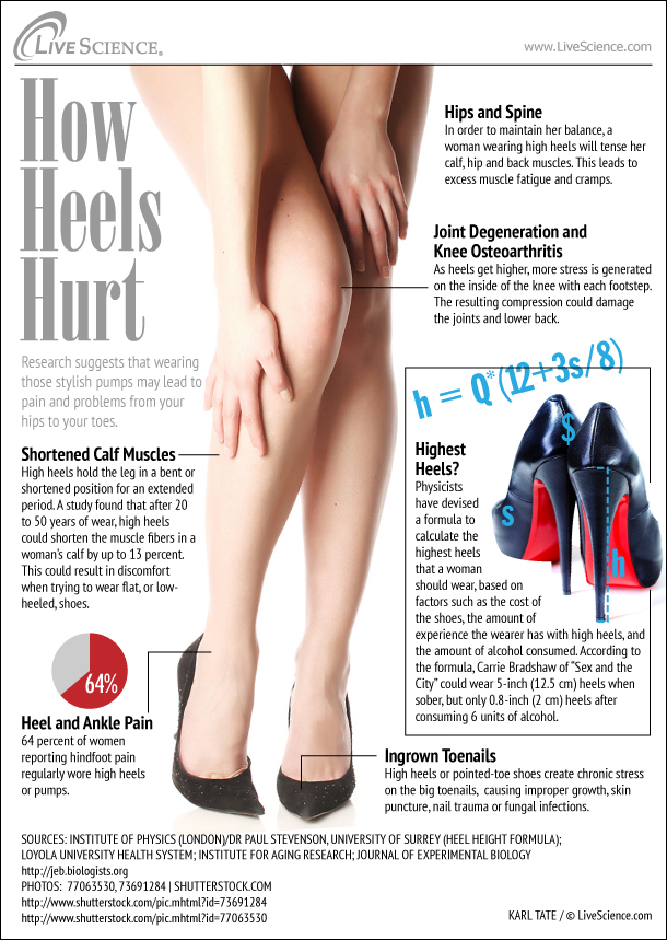 6b0e9fed730 How High Heels Hurt (Infographic) | Live Science