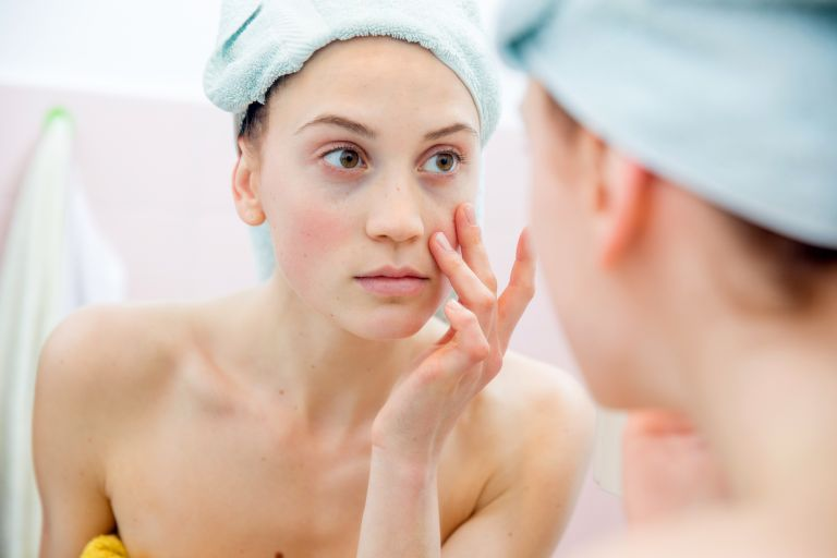skincare routine for rosacea