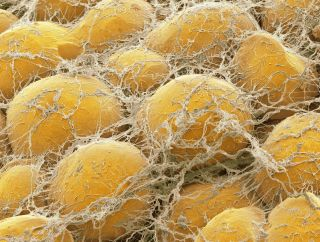 This colored scanning electron micrograph (SEM) shows fat cells surrounded by fine strands of supportive connective tissue.