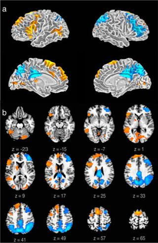 MRI brain images of freestyle rappers