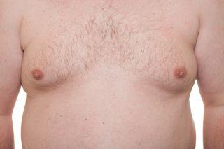 gynecomastia, breast tissue disorder