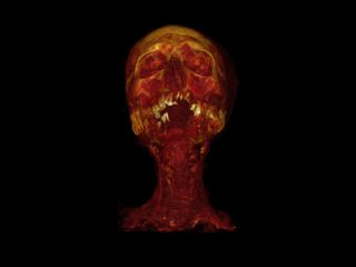 mummy-ct-scan