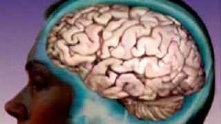 Human brain.