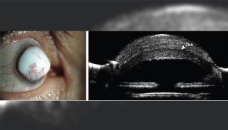 "A man developed an extremely rare eye mass called a ""corneal keloid"" in his right eye. Above, images of the man's eye (left), and a cross-section of the eye showing a ""cleft"" between the cornea and the lesion (right)."