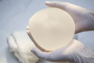 breast implant, implant