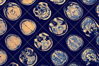 MR brain scans.