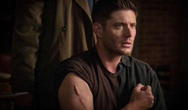 supernatural season 14 dean the scar