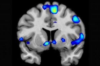 An image of brain areas activated when an individual experiences spiritual feelings.