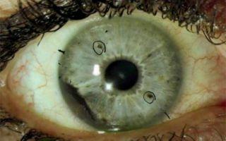 ocular melanoma