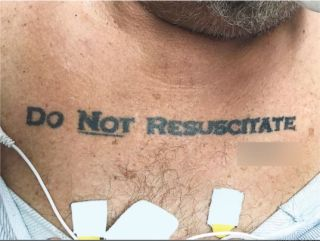 "An image showing a patient with the words ""do not resuscitated"" tattooed on his chest."