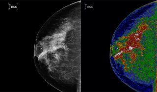 mammogram-both-101014-02