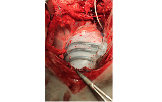 The soft robotic sleeve, shown here implanted on a pig heart, can squeeze the heart to help it pump.