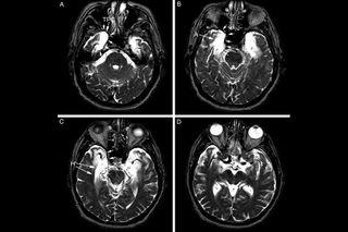 ep's brain, profound amnesia, brain damage