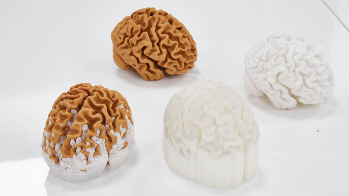 3D-printed models of the brain will help people understand dementia better