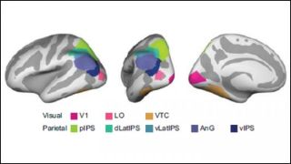 The brain regions in the parietal cortex involved in exaggerating similar memories.