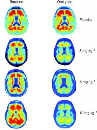 amyloid plaques removed from brain scans