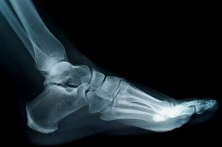 The tarsal bones include the lower part of the ankle, the large calcaneous or heel bone, and the smaller bones at the rear of the arch. The long bones at the front of the arch are the metatarsals.