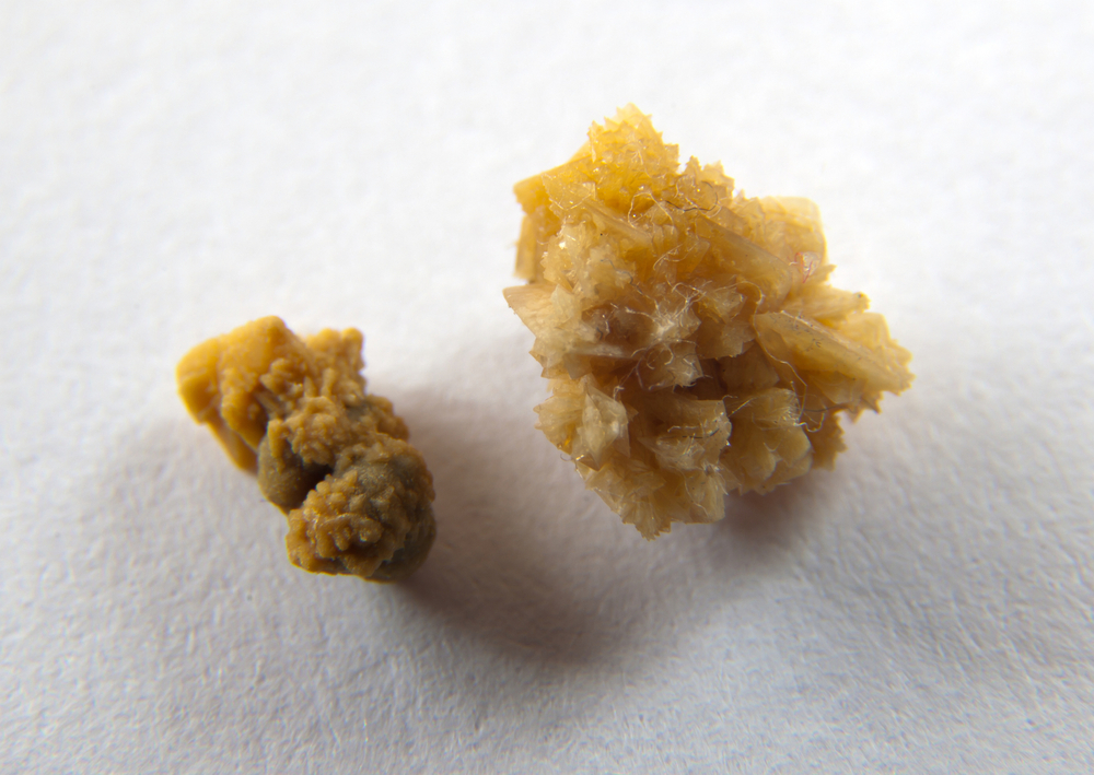 Find Pain Relief For Kidney Stone  To Get Inspired