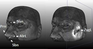 MRI scan of facial landmarks