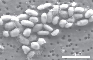 This scanning electron micrograph shows a strain of the alleged arsenic-eating bacterium called GFAJ-1.